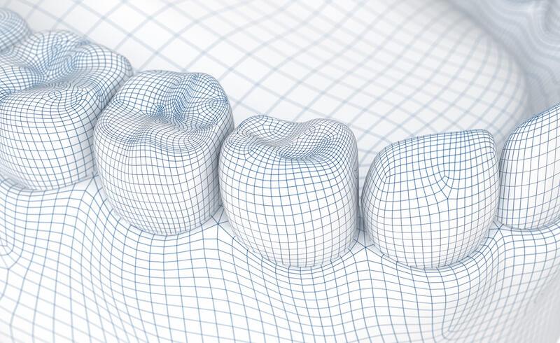 instant-plan-corus-implantes